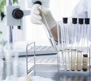 Close-up of the test tube. Glass products of medical care. Image: Leonardo da/Shutterstock.com.
