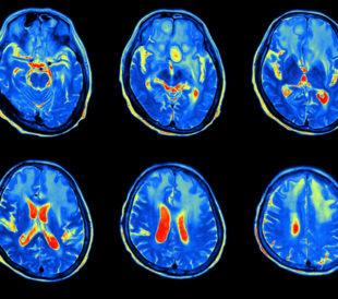 MRI scan image of brain. Image: AkeSak/Shutterstock.com.