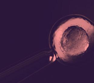 In vitro fertilization under magnification
