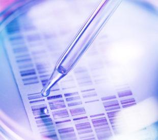 DNA gel petri dish