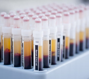 Blood serum samples. Image: bajars/Shutterstock.com