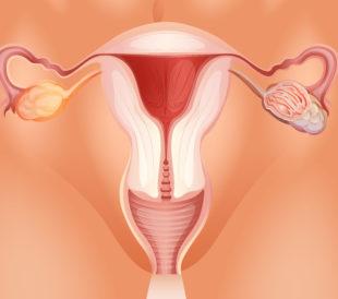 Illustration of ovarian tumor. Image: BlueRingMedia/Shutterstock.com