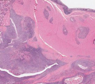 Endometriosis - image illustrates uterine endometrium infiltrating the intestinal wall