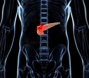 Pancreatic tumor