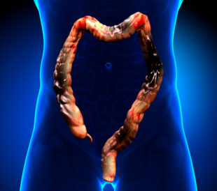 Colorectal cancer. Image: decade3d - anatomy online/Shutterstock.com