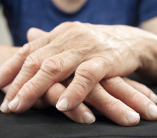 Hands affected by rheumatoid arthritis. Image: Hriana/Shutterstock.com