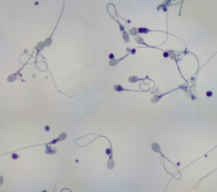 Real Human Sperm and cell bodies photomicrograph viewed under a 100x objective. Image: Carolina K. Smith MD/Shutterstock.com