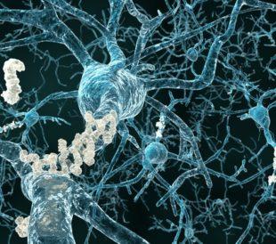 Alzheimer's disease - neurons with amyloid plaques. Image: Juan Gaertner/Shutterstock.com.