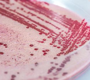 Listeria, bacteria in a petri dish, closeup. Image: Photographee.eu/Shutterstock.com.