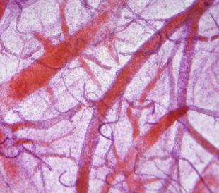 Blood vessels under microscope. Image: Anna Jurkovska/Shutterstock.com.